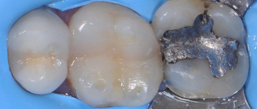 Amalgama per i denti: può essere dannosa per la salute?